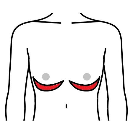 女性化乳房 乳房下切開法