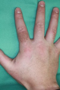 タトゥー除去4植皮6mPOD2