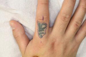 タトゥー除去4植皮design1
