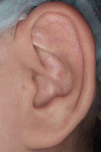耳介形成1 術後6m左1