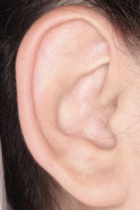 耳介形成1 術前右1