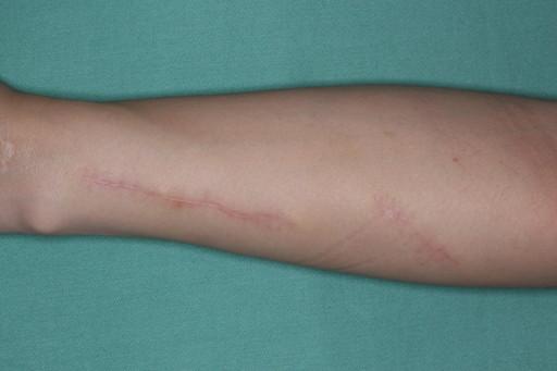 傷跡治療・修正66mPOD