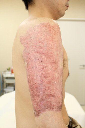 タトゥー除去削皮レーザー2m