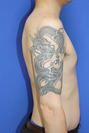 タトゥー除去削皮レーザー前