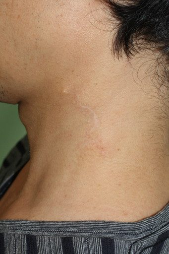 刺青除去5 1yPOD