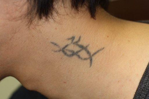 刺青除去5 術前