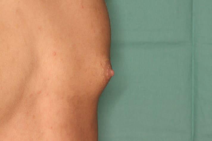 女性化乳房1 術前2