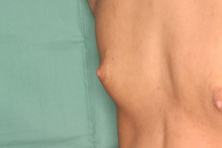 女性化乳房1 術前3