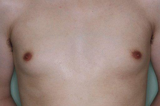 女性化乳房4 術前1
