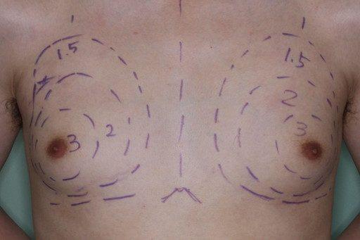 女性化乳房4 術前デザイン