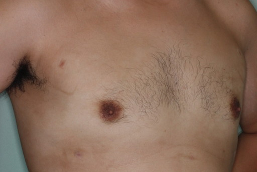 女性化乳房2 術後3カ月2
