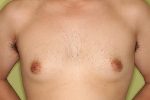 女性化乳房2 術前1