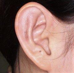 耳介形成術2術後1