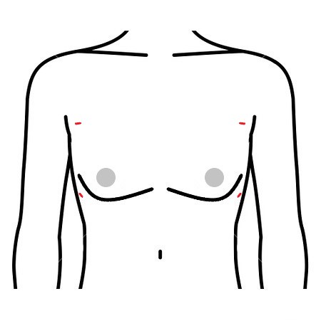 女性化乳房 脂肪吸引法