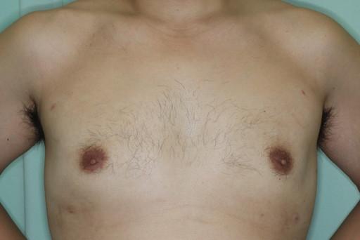 女性化乳房2 術後6カ月1