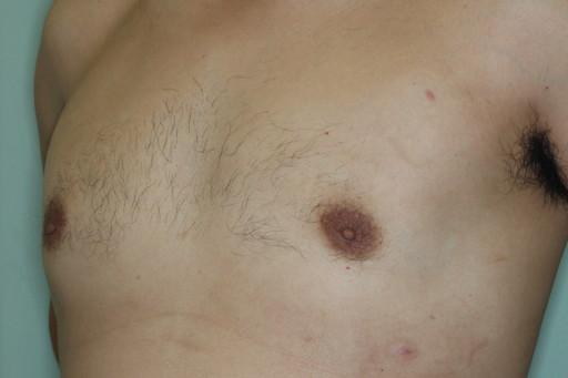 女性化乳房2 術後6カ月3