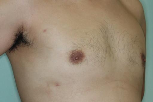 女性化乳房2 術後6カ月2