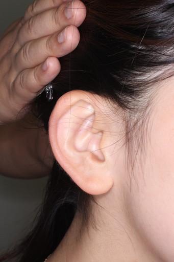 耳介形成術3術前1