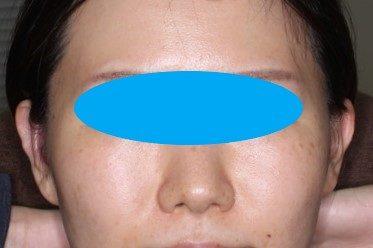 耳介形成術2術後3