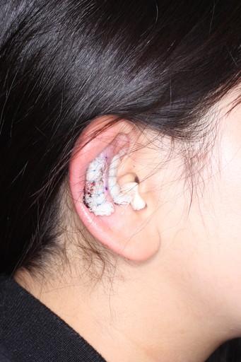 耳介形成術3術後1日