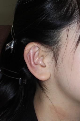 耳介形成術3術後