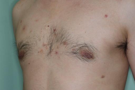 女性化乳房3 術前6カ月2