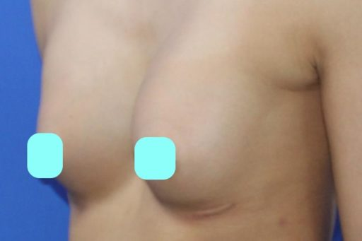 豊胸 症例1術後6カ月3