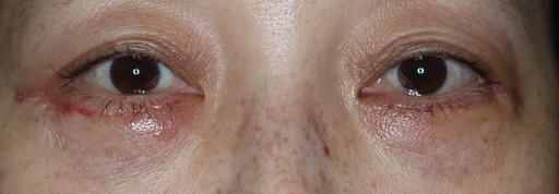 ハムラ法 症例1術後1週間