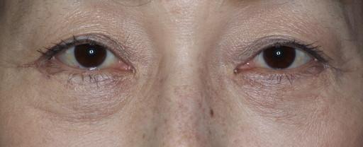 ハムラ法 症例1術後2週間2