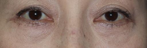 ハムラ法 症例1術後1か月