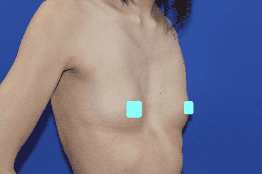 豊胸 症例1術前前3