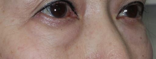 ハムラ法 症例2術前2