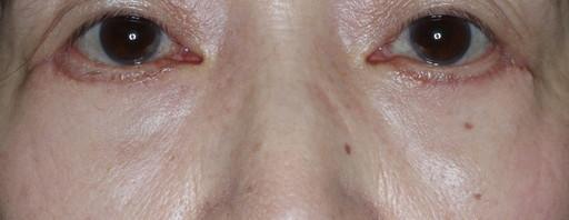 ハムラ法 症例2術後1か月1