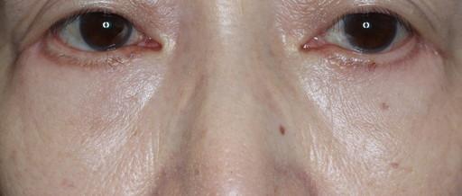 ハムラ法 症例2術後2か月