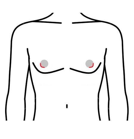 女性化乳房 乳輪下切開法