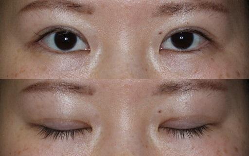 末広二重整形切開法|手術6ヶ月後(症例4)