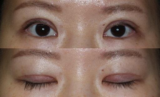末広二重整形切開法|手術2週間後(症例4)