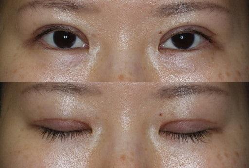 末広二重整形切開法|手術1ヶ月後(症例4)