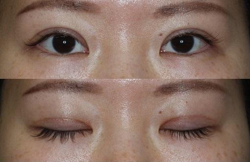 末広二重整形切開法|手術3ヶ月後(症例4)