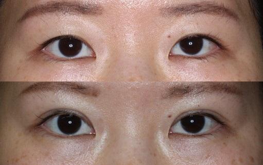 末広二重整形|切開法手術前後(症例4)