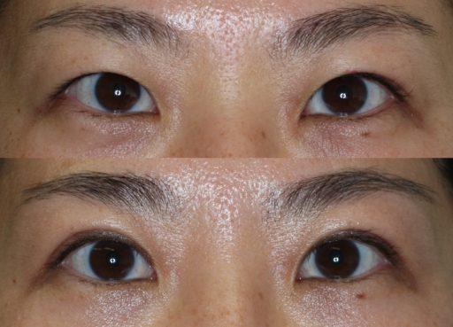 二重整形切開法(30代女性)手術前後:症例6