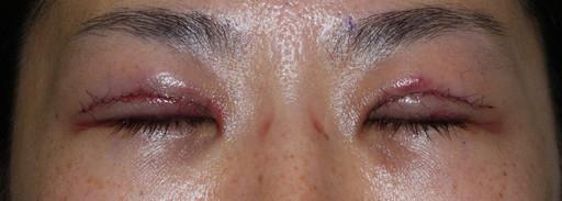 二重整形切開法:手術後1日:閉眼時 症例6