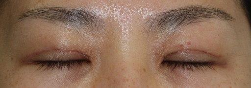 二重整形切開法:手術後2週間 閉眼時:症例6