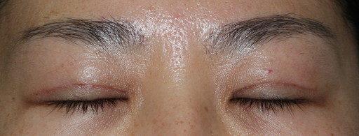 二重整形切開法:手術後1ヶ月閉眼時 症例6