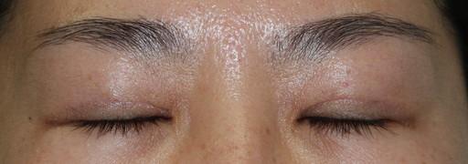 二重整形切開法:手術後3ヶ月 閉眼時:症例6
