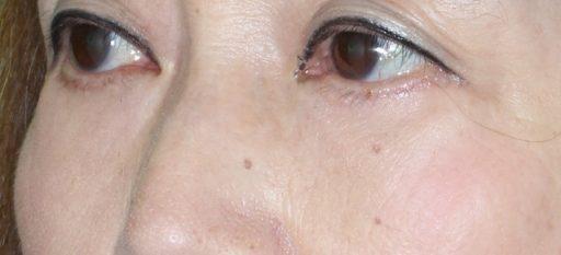 ハムラ法 症例2術後6か月3