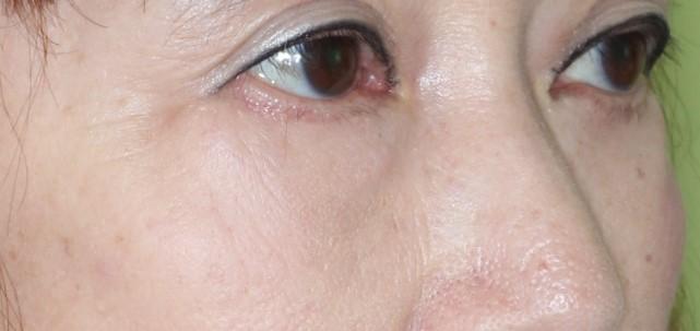 ハムラ法 症例2術後6か月2