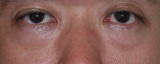 ハムラ法 症例3術前