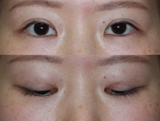 末広二重整形切開法|手術12ヶ月後(症例4)
