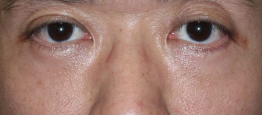 ハムラ法 症例3術後3